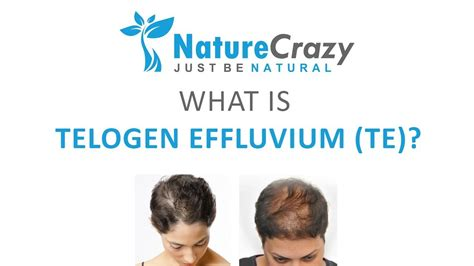 What is Telogen Effluvium (also known as TE)? - YouTube