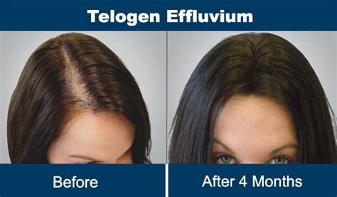 Hair Transplant Clinic in Gurgaon, Delhi: Hair Loss