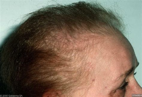 Everything You Need To Know About-Hair Loss Types, Causes