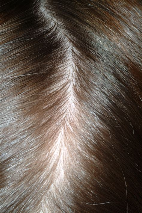 Telogen Effluvium (Stress-Induced Alopecia) - The Clinical